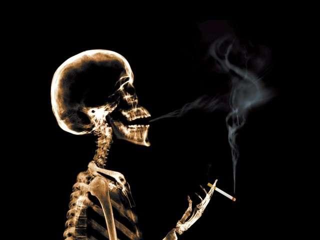X-Ray xr16.jpg